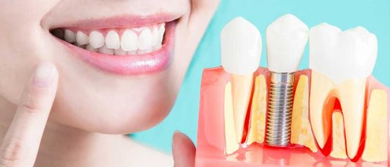 What Is The Future of Dental Implants